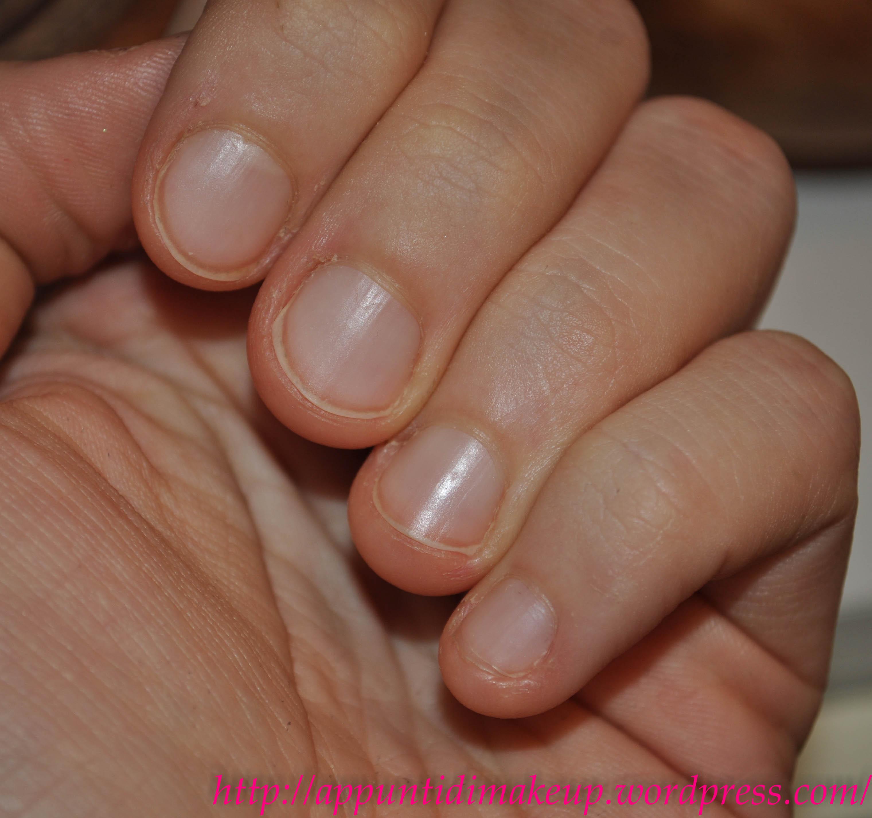 Trattamento di medicine efficace di un fungo di unghie